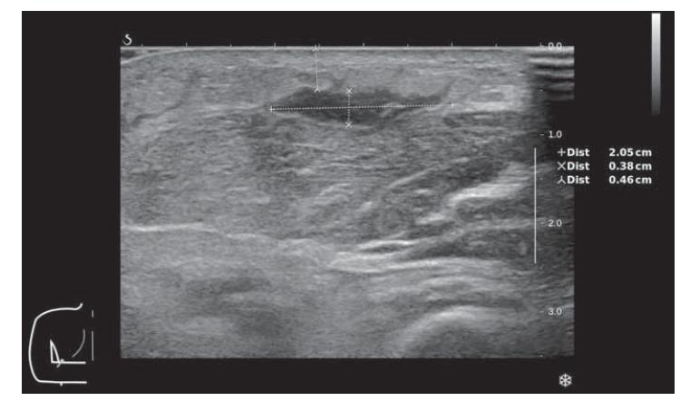 Kožní forma mukormykózy – ultrazvukové zobrazení abscesu v podkoží na volární straně předloktí levé horní končetiny.