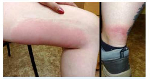 Alergické reakce po poštípání členovci