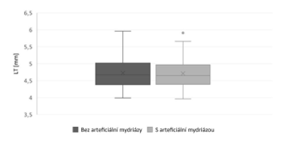 Porovnání hodnot tloušťky čočky (LT) změřených bez arteficiální mydriázy a v arteficiální mydriáze