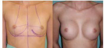 Obr. 1a Augmentace prsů, kulaté implantáty 275 g z podprsní rýhy – před operací<br> Obr. 1b Augmentace prsů, kulaté implantáty 275 g z podprsní rýhy – po operaci