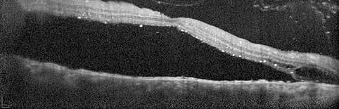Optická koherentní tomografie makuly pravého oka, leden 2018. Neležící makula
