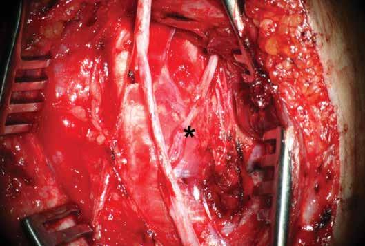 Pohled na dokončenou anastomózu Přímá mikrochirurgická sutura větve n. interosseus anteberachii anterior na motorickou porci n. ulnaris (*) end-to-end.<br> Fig. 2: Post-operative view Direct end-to-end suture (*) of the branch of anterior interosseous nerve of the antebrachium with motor portion of the ulnar nerve.