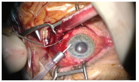 Počáteční fáze zákroku, evakuace krvácení sklerotomií, uvolnění nitrooční hypertenze, přední komora vytvořena viskomateriálem, bulbus poté tonován infuzí zavedenou do přední komory. V retrolentálním prostoru patrná vysoká ablace choroidey v blízkosti za IOL. Snímek z peroperačního videa – z pohledu chirurga