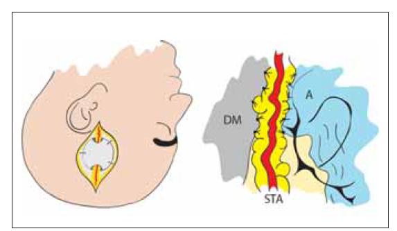 Nepřímá revaskularizace – encefalo-duro-arterio-synangióza. Našití STA, která je ponechaná v kontinuitě, k DM a A. Tím je dosaženo kontaktu tepny s povrchem mozku a neoangiogeneze.<br> A – arachnoidea; DM – dura mater; STA – arteria temporalis superfi cialis<br> Fig. 6. Indirect revascularization – encephalo-duro-arterio-synangiosis. STA in continuity is sutured to DM and A. Contact of artery with brain surface induces neoangiogenesis.<br> A – arachnoidea; DM – dura mater; STA – superfi cial temporal artery