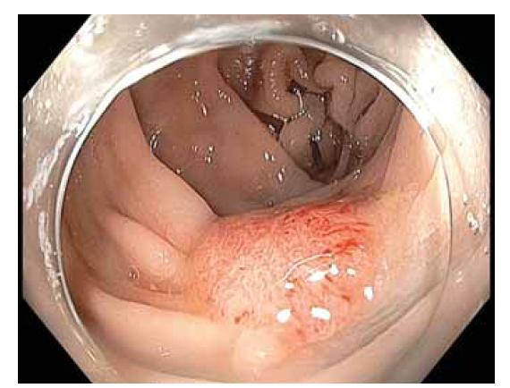 Lokální reziduální neoplazie (LRN) vel. 15 mm v jizvě po endoskopické resekci sigmoidea.<br> Fig. 3. Local residual neoplasia (LRN) size 15 mm in the scar after endoscopic resection in the sigmoid.