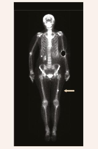 """Kostní scintigrafie 99mTc značeným oxidronátem disodným (11. 1. 2019, vstupní): """"osteoblastické ložisko"""" v diafýze levého femoru"""