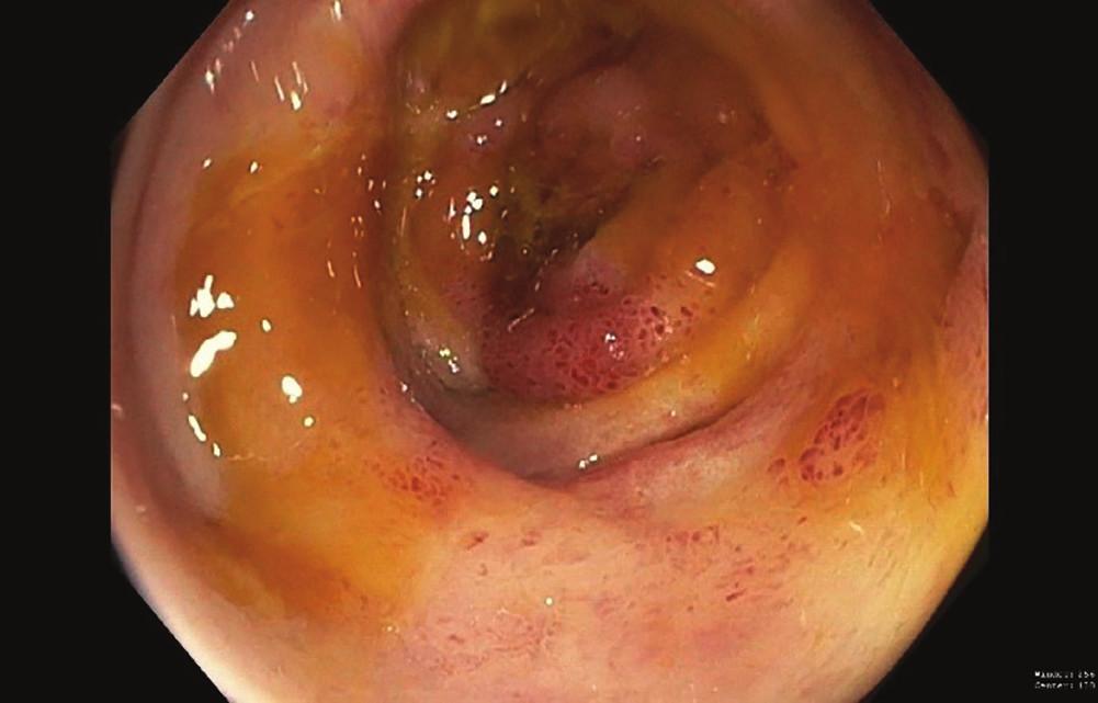 Ischemické vředy na pravém tračníku (kolonoskopie)<br> Fig. 3: Ischemic right colon ulcers (colonoscopy)