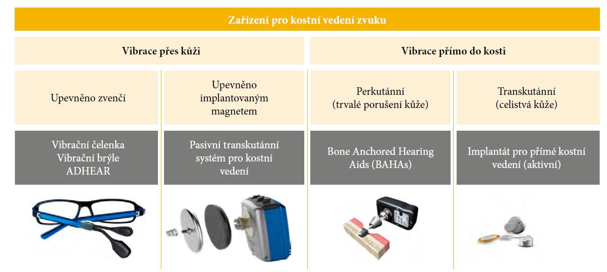 Zařízení pro kostní vedení zvuku