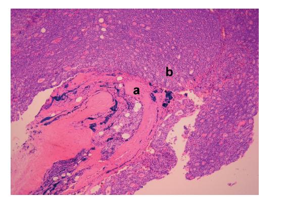 Karcinom příštítného tělíska, zv.100×, barvení HE: pouzdro afekce (a) destruované nádorovou infiltrací (b)<br> (Z archivu MUDr. Traboulsi)<br> Fig. 2: Parathyroid carcinoma at 100× magnification, H&E stained: lesion capsule (a) destroyed by tumor infiltration (b)<br> (From Dr. Traboulsi´s archive)