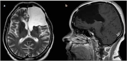 Pooperační MR pacientů po resekcích nízkostupňových gliomů skupiny ANO  Risk, kde operatér dosáhl maximální možné resekce. <br> Fig. 5. Postoperative MRI of patients with low grade gliomas in the group ANO Risk,  when the surgeon was able to achieve maximal possible radical resection.