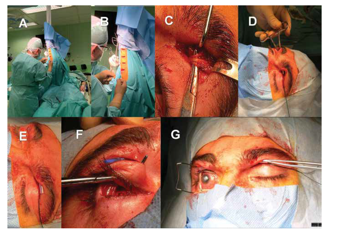 Nepřímá neurotizace rohovky pravého oka za využití štěpu surálního nervu a kontralaterálního supraorbitálního nervu. Příprava štěpu surálního nervu z pravé dolní končetiny (A, B). Lokalizace kontralaterálního (tj. na straně levého zdravého oka) supraorbitálního nervu (C). Preparace podkožního tunelu mezi horním víčkem pravého a levého oka (D), protažení trubičky pro snazší a bezpečnější manipulaci s nervovým štěpem (E). Příprava tunelu z horního fornixu postiženého pravého oka do podkoží horního víčka (F).<br> Nález před aplikací nervového štěpu (G)