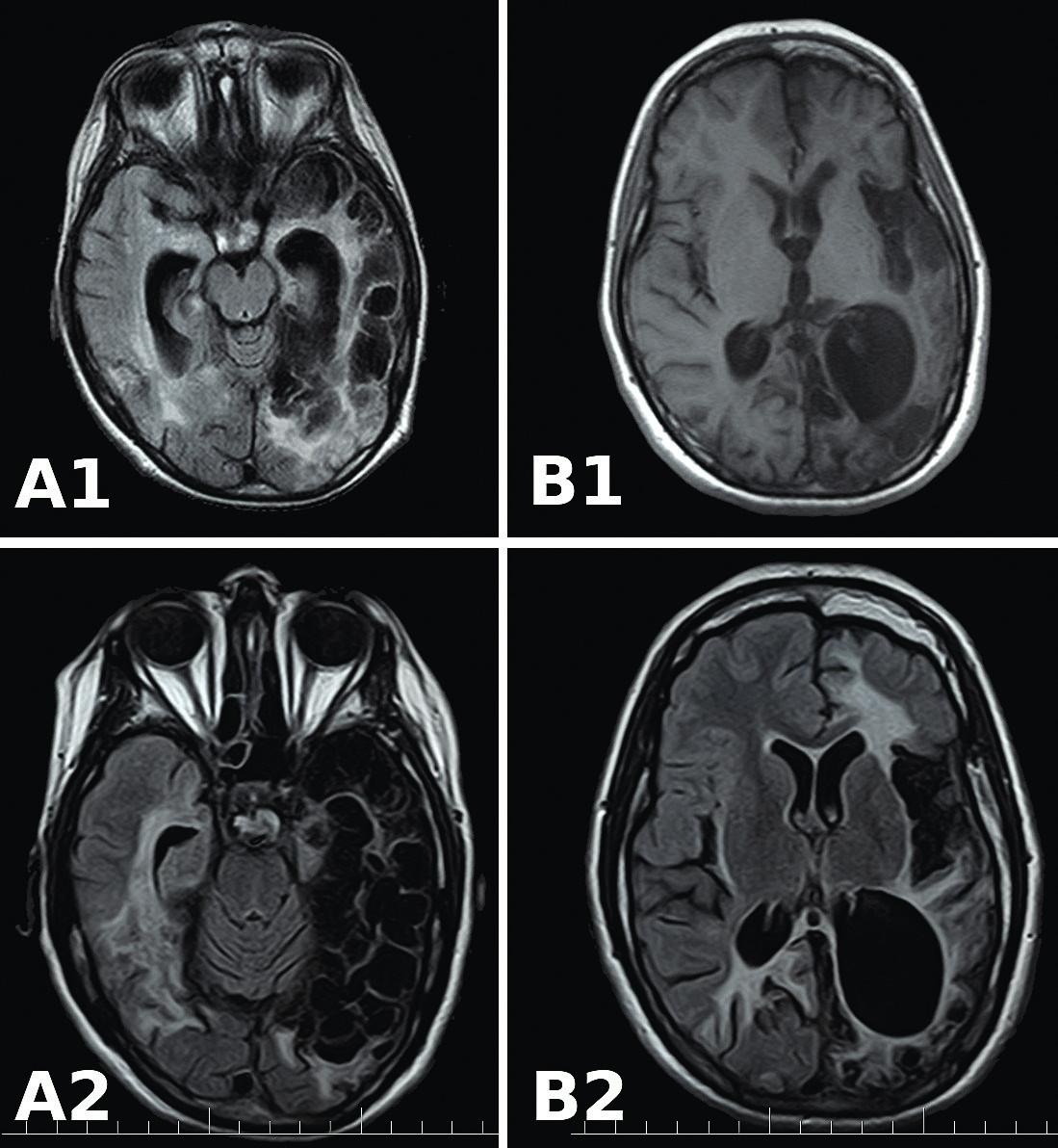 MR FLAIR mozgu. A1 aB1: 6 mesiacov po HSE. Vmieste pôvodných hypodenzných ložísk viacpočetné kortiko-subkortikálne malatické ložiská adilatácia okcipitálneho rohu ľavej bočnej komory. A2 aB2: 8 a12 rokov po HSE. Zvýraznené pôvodné rozpadové malatické ložiská, progresia šírky okcipitálneho rohu ľavej bočnej komory. Bez podstatných zmien vporovnaní sMR po 18 mesiacoch po HSE. <br> Fig. 3.  MR FLAIR of brain. A1 and B1: 6 months after HSE. Multiple cortical-subcortical malatic lesions in the location of the original hypodense areas. Dilatation of the occipital horn of the left ventricle. A2 and B2: 8 and 12 years after HSE. Highlighted original malatic lesions, width progression of the occipital horn of the left ventricle. No significant changes compared to MR after 18 months of HSE.
