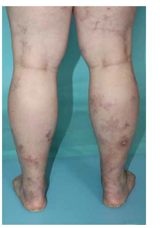 Livedo racemoza dolních končetin u pacientky s ANCA asociovanou vaskulitidou