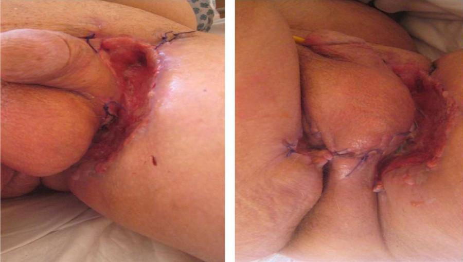 Průběh hojení tři týdny od operace s drobnou recidivou kondylomat<br> Fig. 2. The course of healing 3 weeks after surgery with apparent small recurrence of condyloma