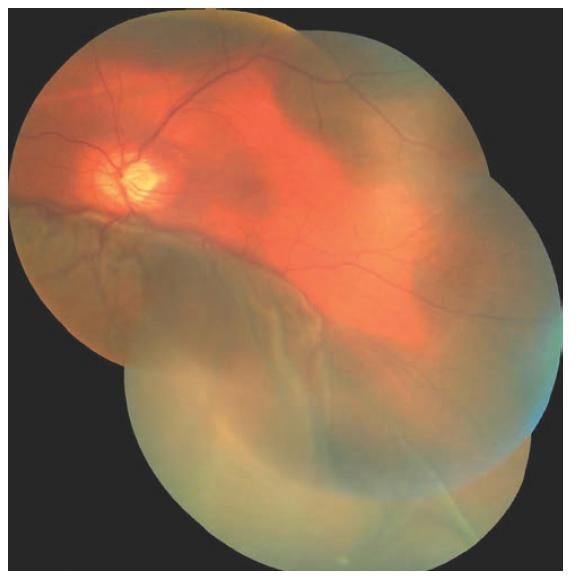 Foto fundu levého oka 1. den po chirurgické revizi OL