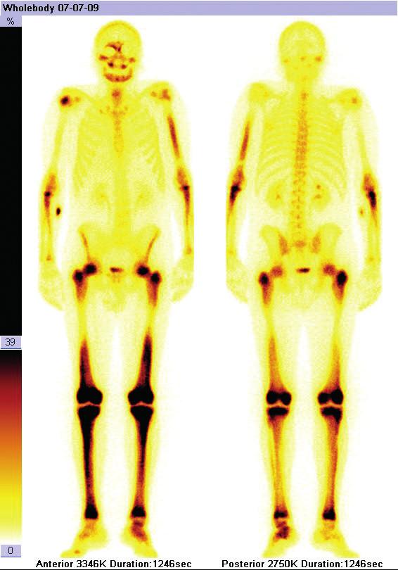Scintigrafie skeletu u pacienta s ECD: zvýšená aktivita radiofarmaka, především v dlouhých kostech (humery, femory, tibie), ale také v jiných oblastech skeletu (obě klavikuly, pánev, kalva)
