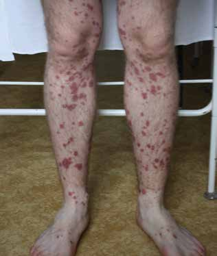 Vasculitis allergica po amoksiklave – leukocytoklastická vaskulitída s palpovateľnou purpurou