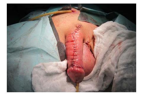 Dorzální strana penisu, finální stav po sutuře<br> Fig. 11. The dorsal side of the penis; the final state after suturing