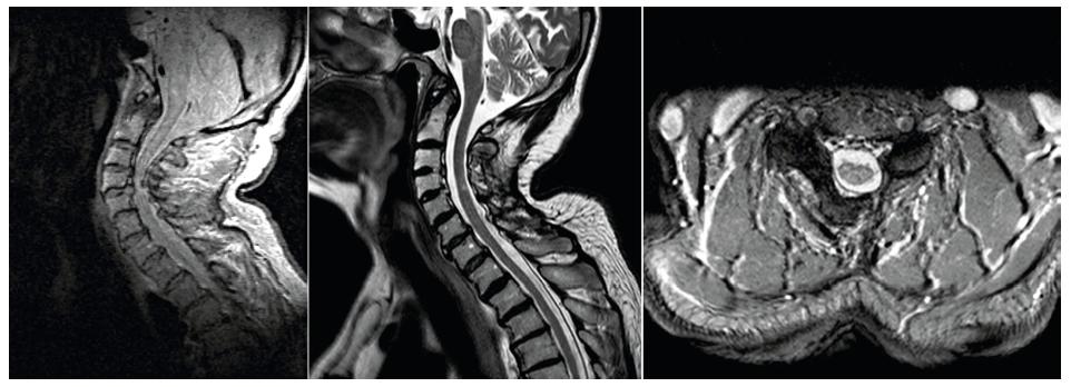 Vlevo NMR krční páteře s útlakem míchy, uprostřed a vpravo po operaci s rozšířením páteřního kanálu, přetrvává ložisko myelopatie