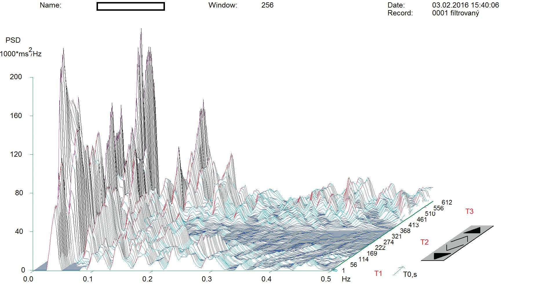 Spektrální analýza variability srdeční frekvence probanda po aplikaci zvoleného relaxačního programu AVS.