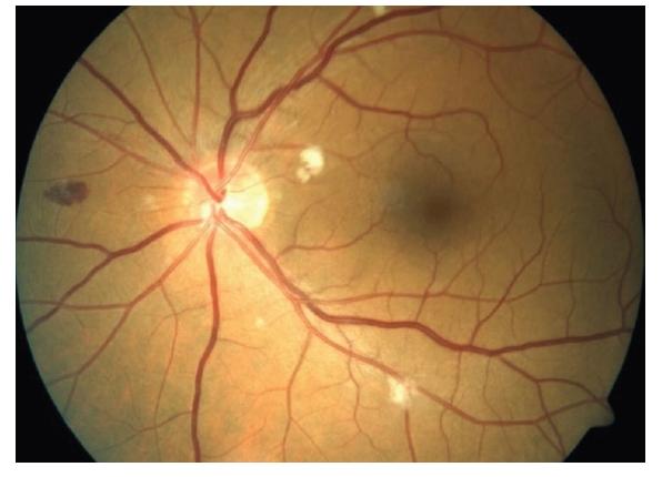 HIV mikrovaskulopatie a retinopatie – hemoragie, vatovitá ložiska, drobná mikroaneurysmata
