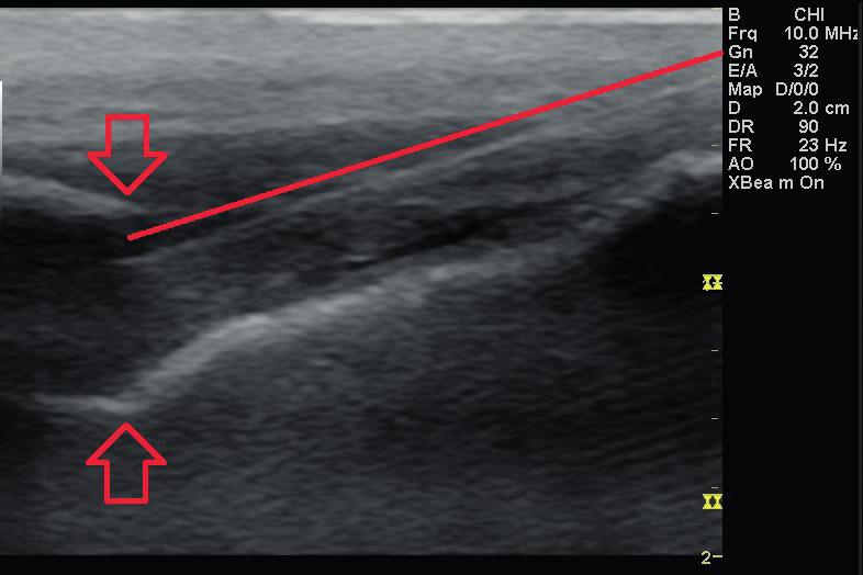 UZ zobrazení hiatus sacralis v transverzální rovině s viditelným průběhem jehly (in-plane technika punkce). Čára označuje průběh jehly pronikající do hiatus sacralis (označen šipkami)