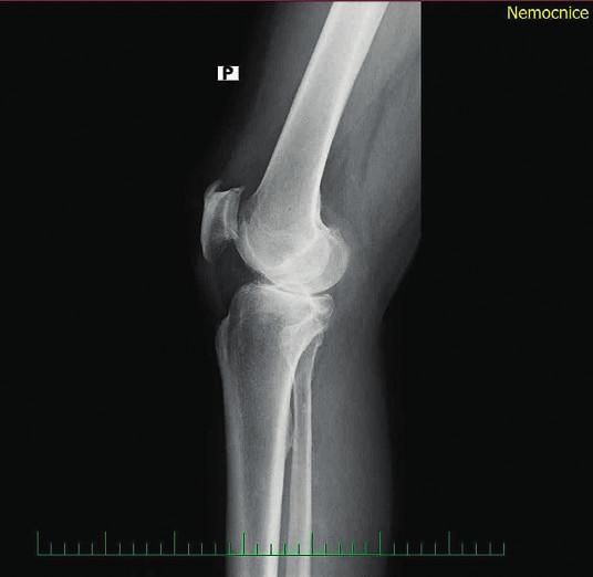 Obr. 2b Rtg pravého kolenního kloubu - boční snímek 3. 9. 2013.