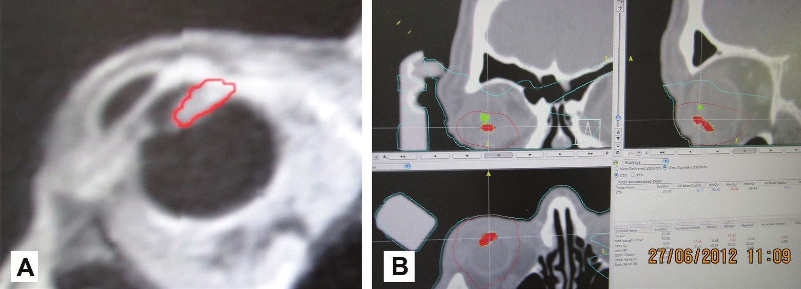 """MRI image of patient with sketched tumour in the region of the corpus ciliare with outgrowth in a """"forward"""" direction and into the chamber angle (A), and sketching of the tumour of the corpus ciliare (red colour) and lens (green colour) in the planning scheme for radiosurgical irradiation on a linear accelerator (B)"""