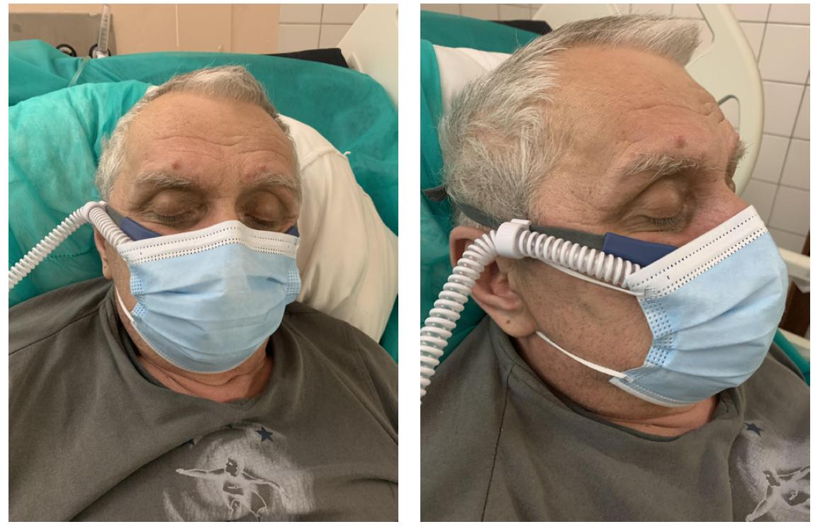 Pacient s HFNC a nasadeným chirurgickým rúškom počas testu. Chirurgické rúško prekrýva nos, ústa a bradu. Pacient leží v semi-Fowlerovej polohe – hlavová časť postele je elevovaná 30 ° až 45 °