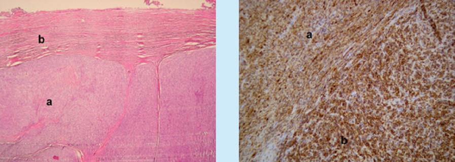 Mikroskopické obrazy STUMP s imunohistochemickým barvením. Vlevo (zvětšení 200×, Ki67) nízká proliferační aktivita v dobře diferencovaných úsecích (a), jádra buněk v proliferační fázi mají hnědé zbarvení. V úsecích s odlišnou morfologií je patrné zvýšení proliferační aktivity (b). Vpravo (zvětšení 200×, průkaz hladkosvalového aktinu, Smooth Muscle Actin, SMA) dobře diferencované úseky nádorové tkáně tvořené vřetenitými buňkami jsou pozitivní, pozitivní reakce je vizualizovaná hnědým zbarvením nádorových elementů (a), v nízce diferencovaných úsecích nádorového ložiska tvořené buňkami s odlišnou morfologií je reakce negativní (b)<br> Fig. 2. Microscopic images of STUMP with immunohistochemical staining. On the left (magnification 200 ×, Ki67) low proliferative activity in well-differentiated sections (a), cell nuclei in the proliferation phase are brown in color. In sections with different morphology, an increase in proliferative activity is evident (b). On the right (magnification 200 ×, detection of smooth muscle actin, SMA) well-differentiated sections of tumor tissue formed by spindle cells are positive, positive reaction is visualized by brown staining of tumor elements (a), in low-differentiated sections of tumor deposit formed by cells with different morphology is a negative reaction (b)