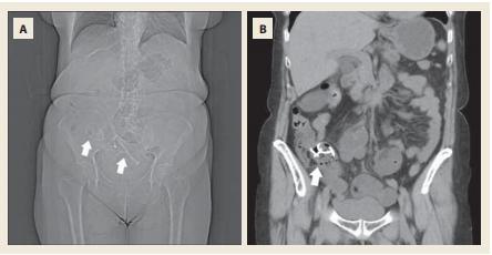 Nativní CT břicha. Topogram s uvízlými stenty v terminálním ileu a  distální částí ilea (A). Double pigtail stent v oblasti terminálního ilea obturující  orální část Bauhinské chlopně (B). <br> Fig. 5. Native-phase abdominal CT scan. Topogram with stucked stents in terminal ileum and distal part of ileum (A). Double-pigtail stent in terminal ileum obstructing the oral part of ileocaecal valve (B)