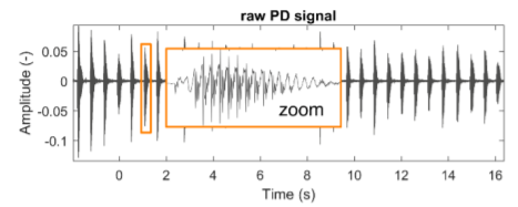 An example of a typical raw speech signal from