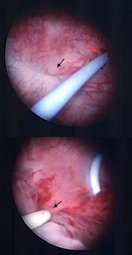 a, b. a) Typický nálevkovitý vzhled píštěle během cystoskopie (černá šipka), stent zavedený do levého ureteru (červená šipka); b) sondáž píštěle ureterálním katétrem usnadňuje manipulaci a orientaci v průběhu výkonu (černá šipka), stent zavedený do levého ureteru (červená šipka)<br> Fig. 6 a, b. a) Typical funnel-shaped appearance of the fistula during cystoscopy (black arrow), stent inserted in the left ureteric orifice (right arrow); b) ureteral catheter inserted in the fistula to aid manipulation and navigation during surgery (black arrow), stent inserted in the left ureteric orifice (right arrow)
