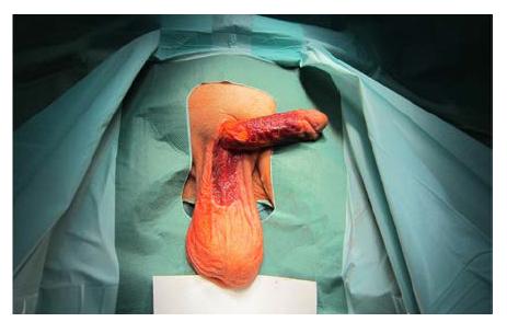 Granulační tkáň jeden měsíc po nekrektomii kožního krytu penisu, předkožky i penoskrotální oblasti<br> Fig. 4. Granulation tissue one month after necrectomy of the penile skin, prepuce, and penoscrotal region