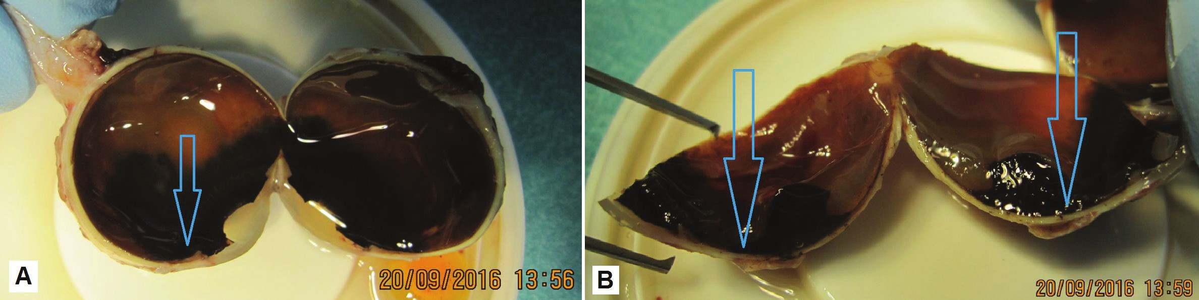Macro photo of enucleated eyeball (A), detail of pronounced pigmented malignant melanoma in cross-section (B)