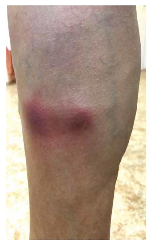 Erytematózní noduly bérců při nodulární vaskulitidě