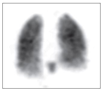 3D zobrazení plicní perfuze, pohled zadní. Je patrná homogenní distribuce perfuze obou plic a neobvyklá akumulace v dolním mediastinu.