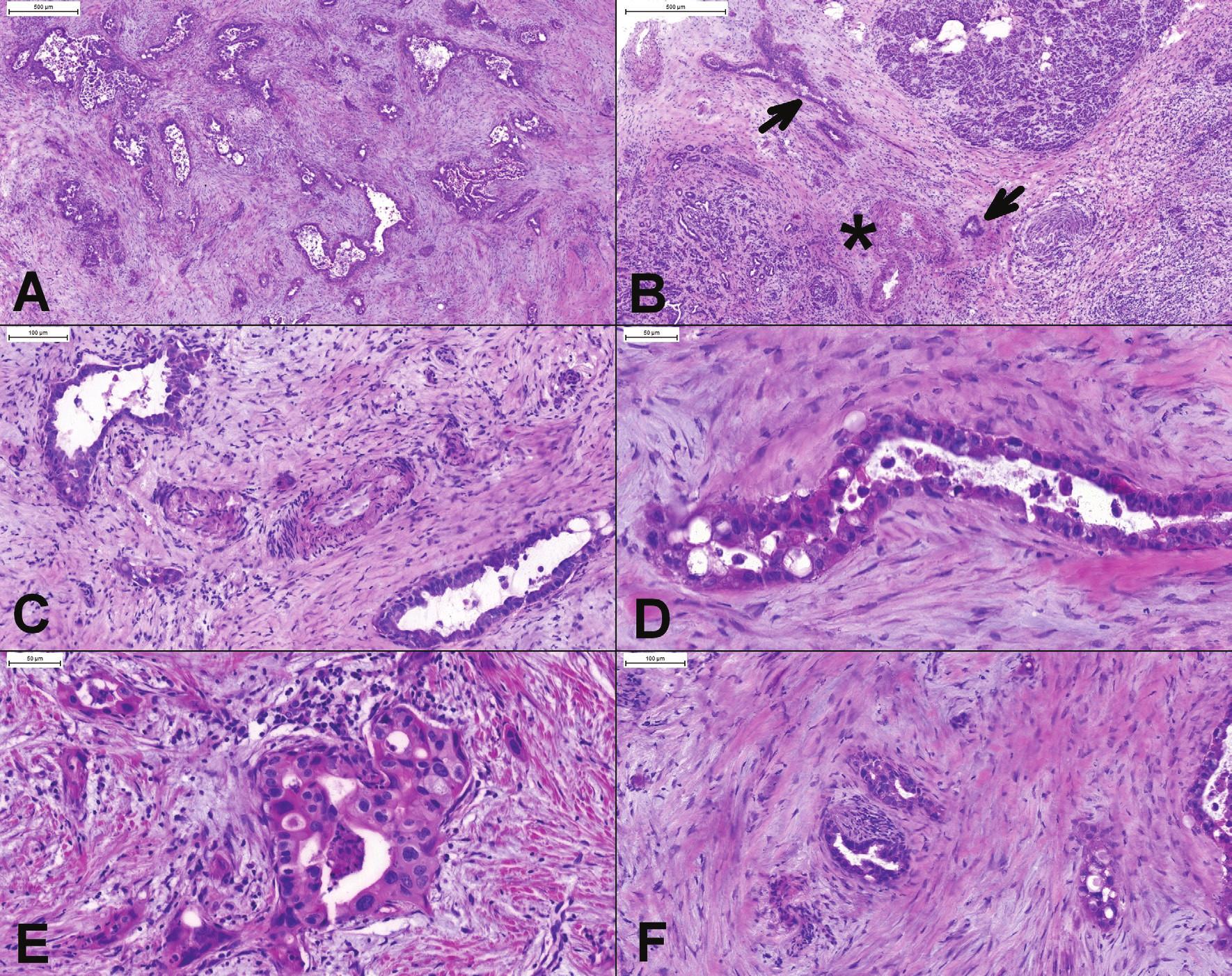 (A) Duktálny karcinóm pankreasu. Vo väčšine prípadov je diagnóza ľahká. Chaoticky usporiadané žliazky s cytologickými atypiami a debris v lúmenoch sú jednoznačnou známkou malignity. (B, C) Žliazky karcinómu lokalizované vo fibrotických interlobulárnych septách (), v blízkosti muskulárnych artérií (*). V normálnom pankrease dukty a väčšie cievy nikdy nemajú spoločný priebeh. (D) Nekrotický debris v atypickej žliazke. (E) Variácia veľkosti jadier 4:1, inkopletne formované žliazky a infiltrácia po jednotlivých bunkách. (F) Perineurálna invázia