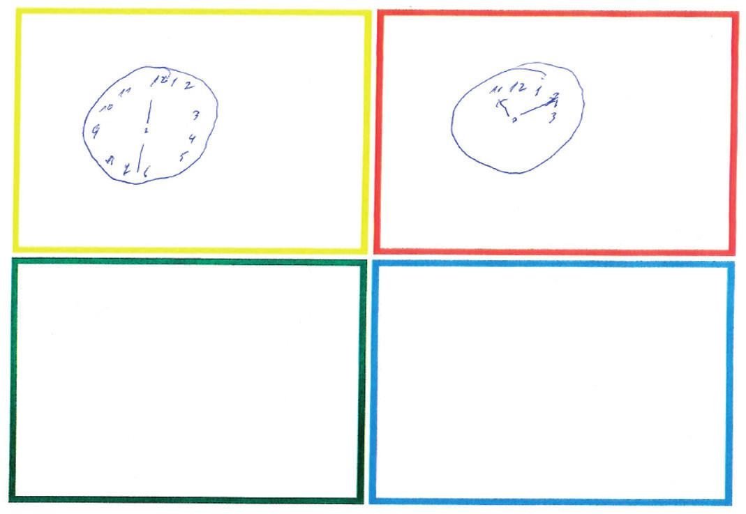 Obr. 1a Screeningové vyšetření kognitivních funkcí, hlavně paměti a schopnosti plánovat, testem Clock-In-the-Box (www.heartbrain.com, [3]), odpoledne před první karotickou endarterektomií. Výsledek 4−5 bodů z 8 možných svědčí pro kognitivní dysfunkci, která je zřejmě důsledkem hypoxie mozku – na NIRS hodnoty rSO2 37 % vlevo na operované straně, 38 % vpravo na kontralaterální straně, při dýchání vzduchu a periferní saturaci 95 %.