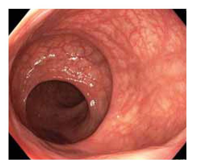 Normální nález na sliznici rekta a rektosigmatu.<br> Fig. 1. Normal finding on the mucosa of  the rectum and rectosigma.