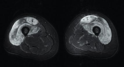 Axiální STIR sekvence – výrazný edém předních svalových skupin, šipkou označena fasciitis m. rectus femoris. Zdroj: Archiv Revmatologického ústavu (ÚVN Střešovice, Discovery 450; 1,5 T)