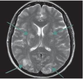 Syndrom reverzibilní encefalopatie v zadní cirkulaci (PRES syndrom). Vyšetření MR, transverzální T2 turbospin echo snímek – šipky směřují k symetrickému T2 zvýšenému signálu (edému) oboustranně okcipitálně a rovněž označují změny v úrovni bazálních gangliích na rozhraní tepenného zásobení.<br> Fig. 1. Posterior reversible encephalopathy syndrome. MRI scan, transversal T2-weight - ed turbospin echo image – bilateral symmetrical T2 hyperintensities suggesting edema in the occipital lobes and vascular borderzones of basal ganglia (arrows).