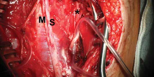Pohled před vlastním transferem Vypreparováno větvení n. ulnaris (U), kmen rozčleněn na motorickou (M) a senzitivní (S) porci a donor motorických vláken větev n. interosseus antebrachii anterior (*). Fig. 1: Pre-operative view<br> Exposure of ulnar nerve (U) with its branches, division into motor (M) and sensory (S) portions. Exposure of the branch of anterior interosseous nerve of the antebrachium (*) as a donor of motor fibres.
