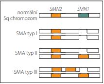 Typy SMA podle způsobu vyřazení funkčního genu SMN1 [29].<br> Fig. 3. SMA types based on the way of disabling of functional SMN1 gene [29].