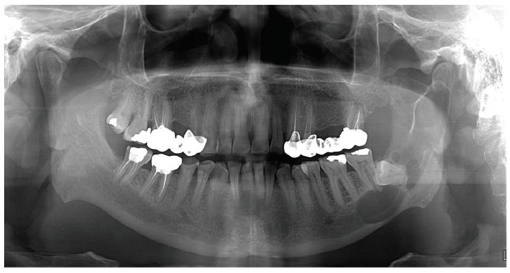 Obr. 1A Multilokunární cystická léze před primární operací <br> Fig. 1A Multilocular cyst before first operation