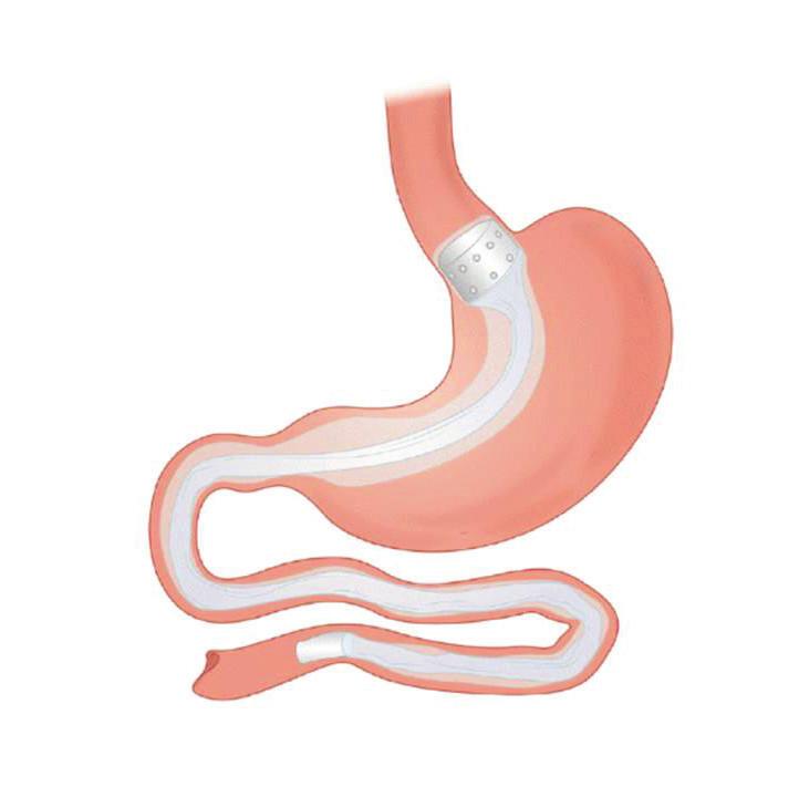 Gastroduodenojejunální rukáv<br> Fig. 2: Gastroduodenojejunal sleeve