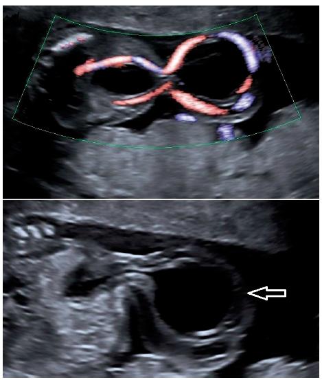 Ultrazvukový nález – cysta pupečníku komunikující s močovým měchýřem