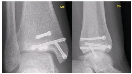 Pacient byl klinicky arentgenově sledován až dodoby uzavření růstových štěrbin, tedy ještě dalších 16 měsíců