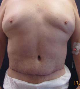 Lower body lifting – pooperační foto zpředu