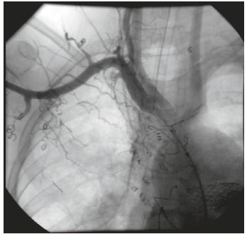 Angiografia znázorňujúca nástrek pravej podkľúčnej tepny so 4 kolaterálami. V pravej časti hrudníka viditeľná sieť vzájomne prepojených aorto-pulmonálnych kolaterál (pacient 1).<br> Fig. 1. Injection in a right subclavian artery showing 4 aortopulmonary collateral vessels. Vascular bed of aortopulmonary collaterals in the right hemithorax (patient 1).